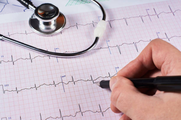 Cardiogram of the heart stock photo