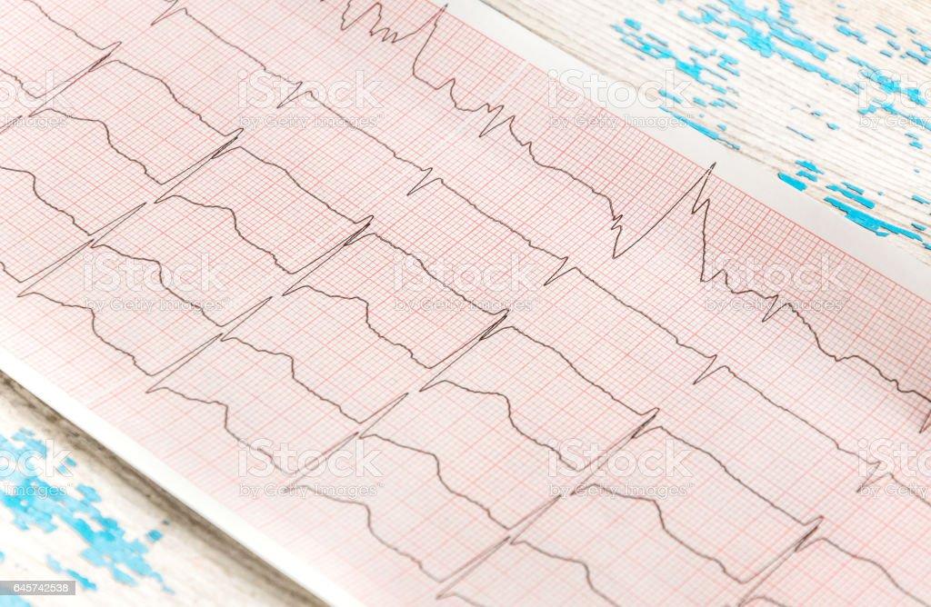 -Cardiogram sobre uma velha mesa de madeira. - foto de acervo