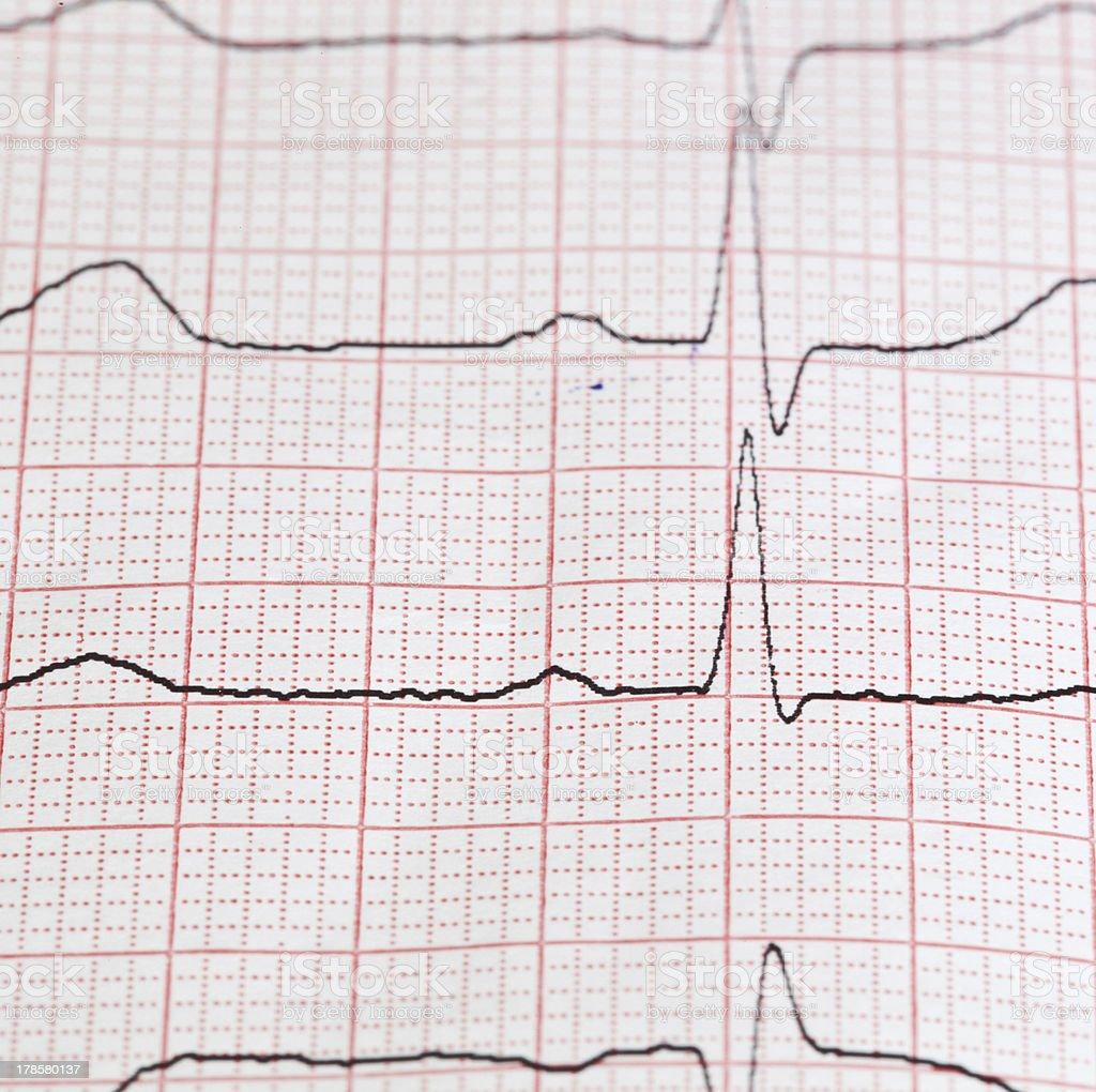 cardiogram royalty-free stock photo