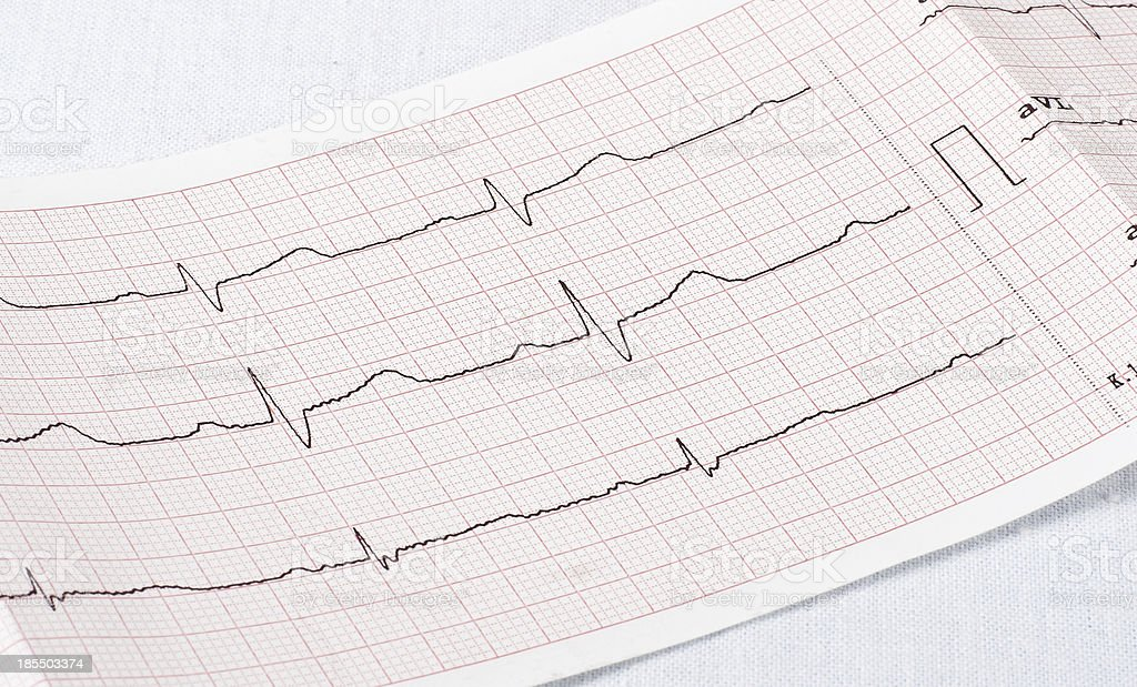 cardiogram royalty-free stock photo