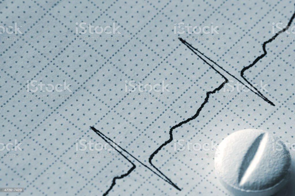 Cardiogram Tape Graph Macro Closeup, White Pill, Blue Key royalty-free stock photo