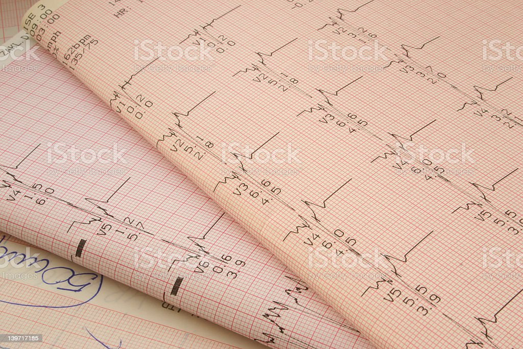 cardiological test results #2 royalty-free stock photo