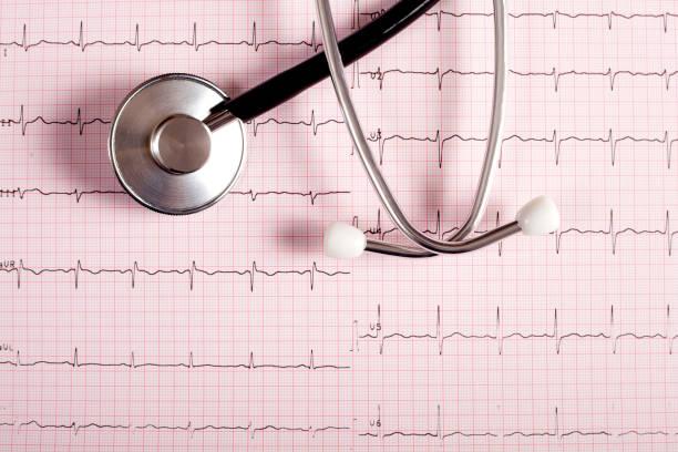 kardiologie stethoskop und grafiken - pulsmessung stock-fotos und bilder