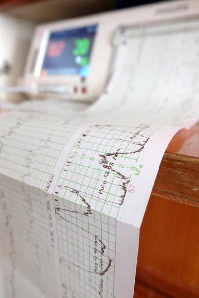 Kardiotokografie – Foto