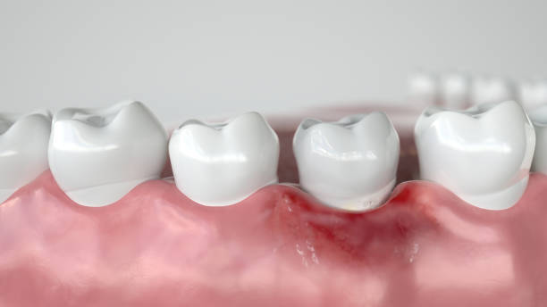 cariës in drie stadia - fase 1 gingivitis - 3d rendering - tandvleesontsteking stockfoto's en -beelden