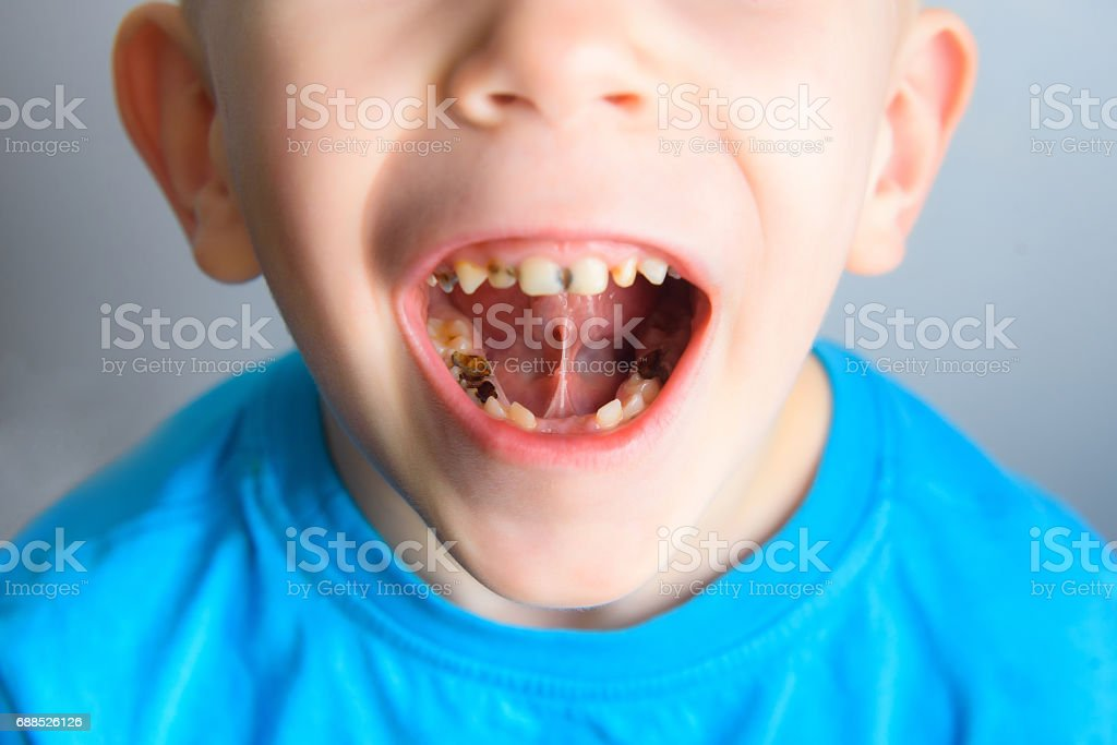 Caries on the teeth of a young child stock photo