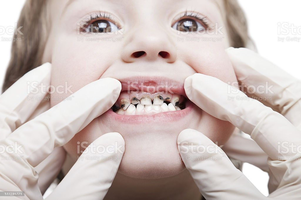 Caries teeth decay royalty-free stock photo