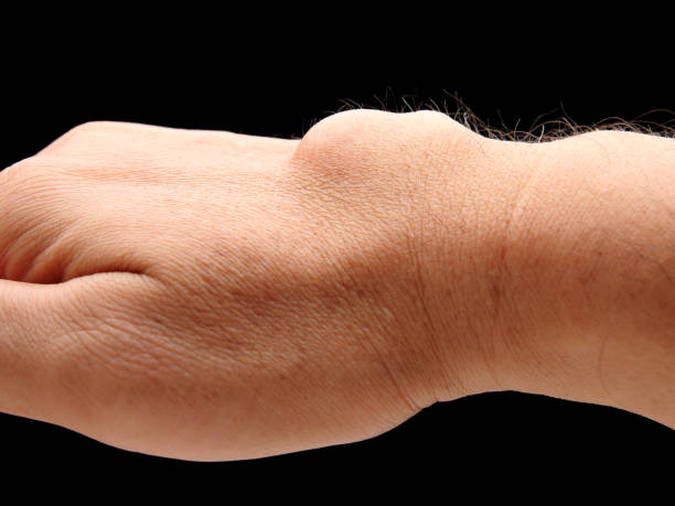 carpal ganglion cyst - cyst stock pictures, royalty-free photos & images