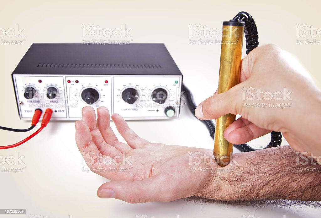 Carpal Tunnel Syndrome Laser Therapy Treatment Stock Photo Istock
