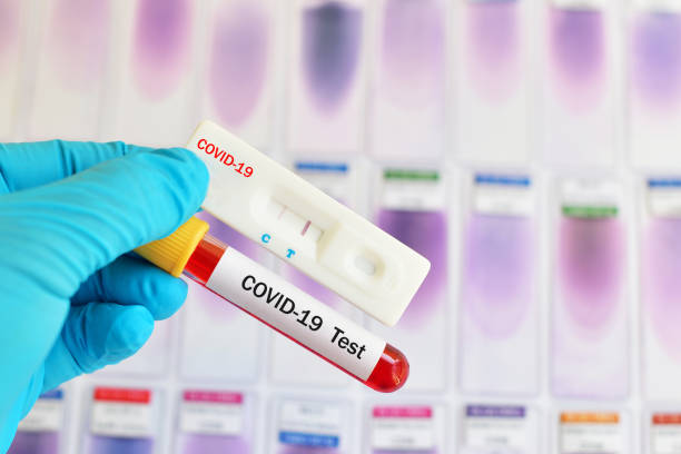Cassette rapid test for COVID-19 Cassette rapid test for COVID-19 or novel coronavirus 2019 found in Wuhan, China biological process stock pictures, royalty-free photos & images