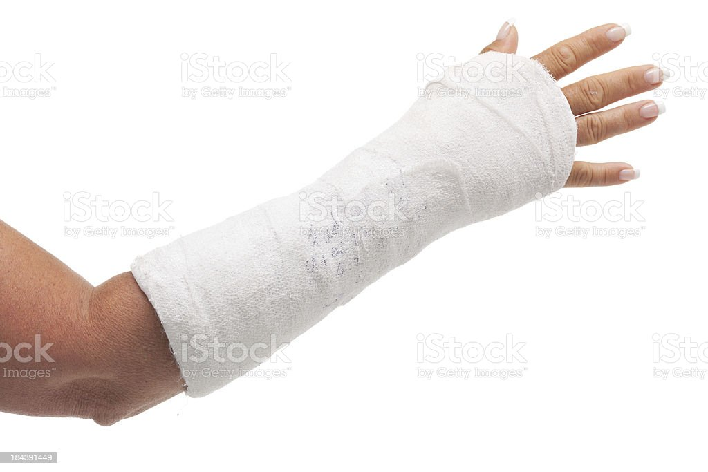 cast arm stock photo