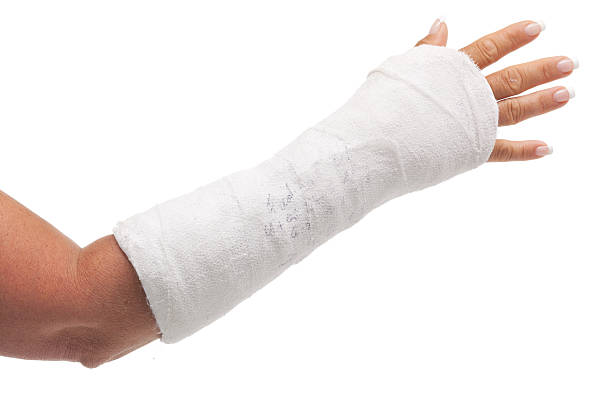cast arm female forearm in cast isolated on white plaster stock pictures, royalty-free photos & images
