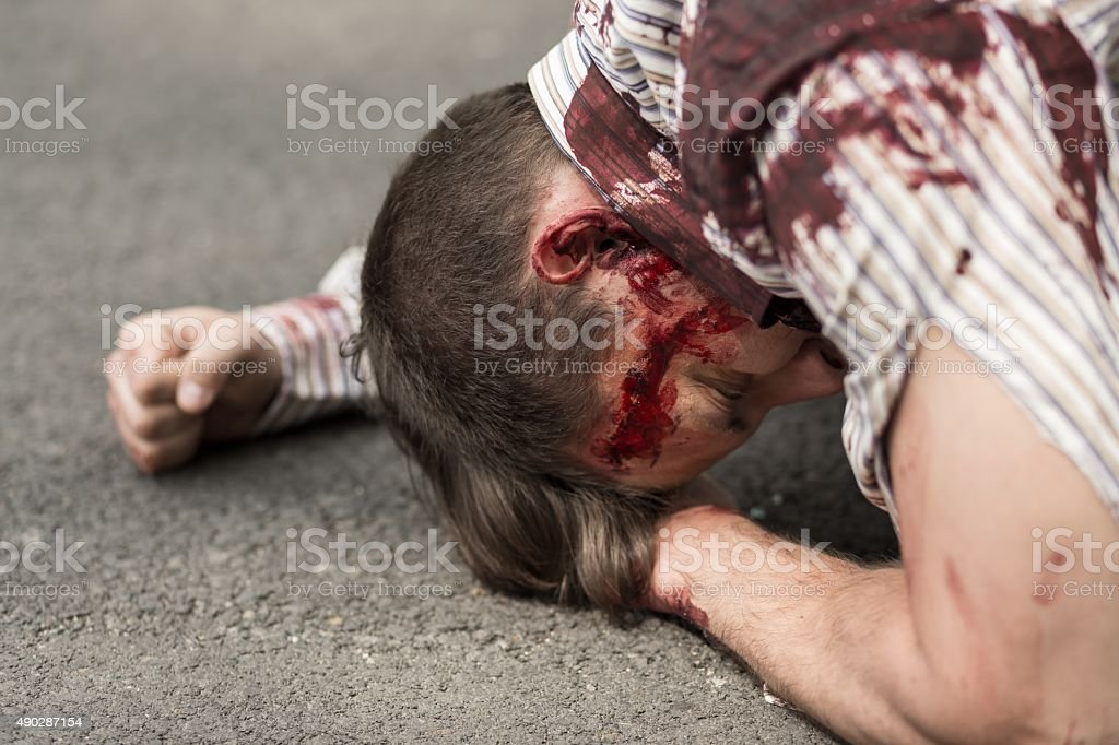 Casualty of terrorist attack stock photo
