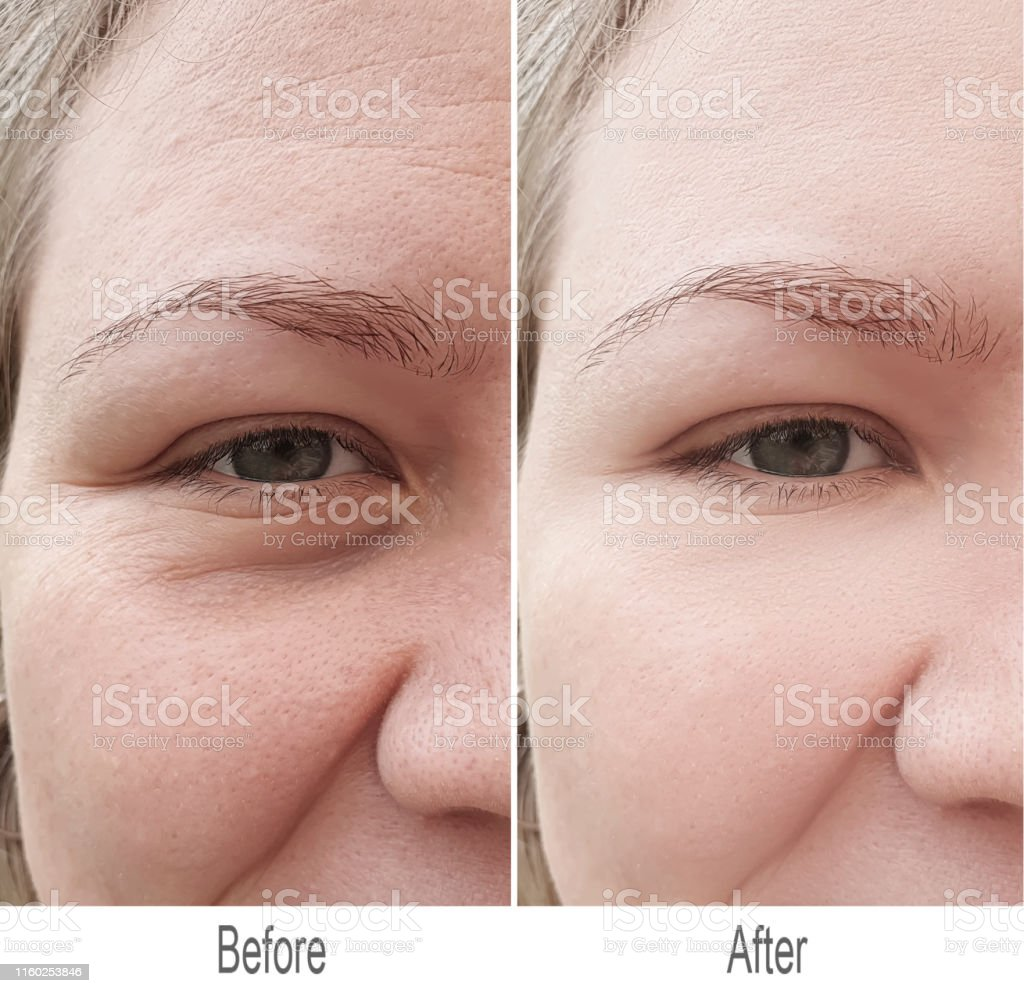 after, face, before, wrinkles, girl, skin, woman, removal,...