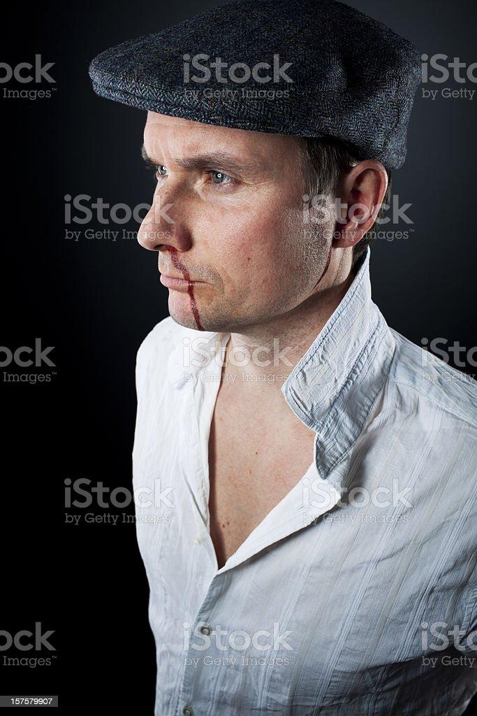 caucasian macho man half body portrait, bleeding nose royalty-free stock photo