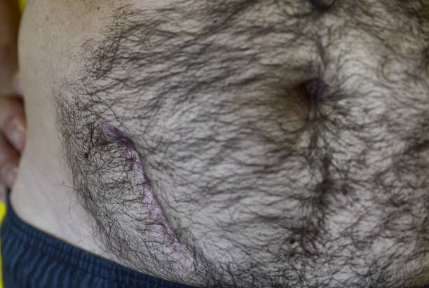 Caucasian man shows his scar due to removal surgery stock photo