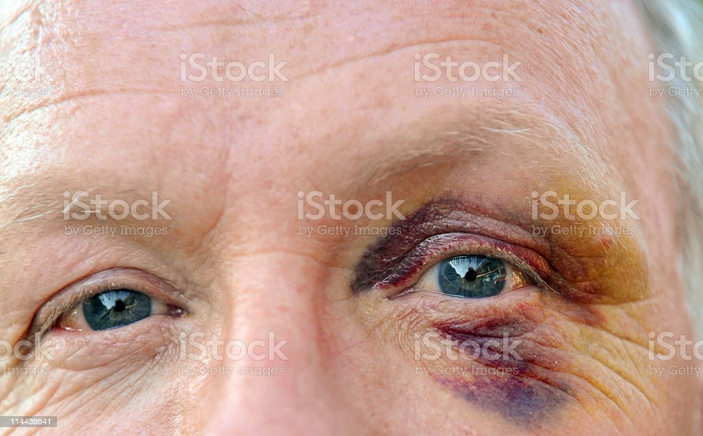 Caucasian senior  man with bruises eye looking at camera stock photo