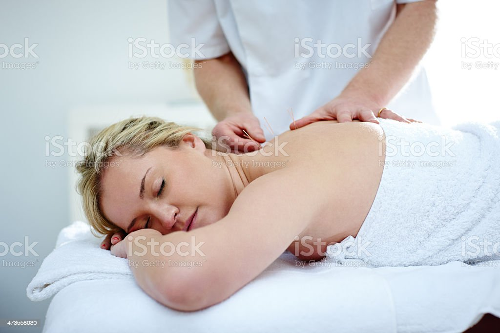 Caucasian woman receiving an acupuncture treatment stock photo