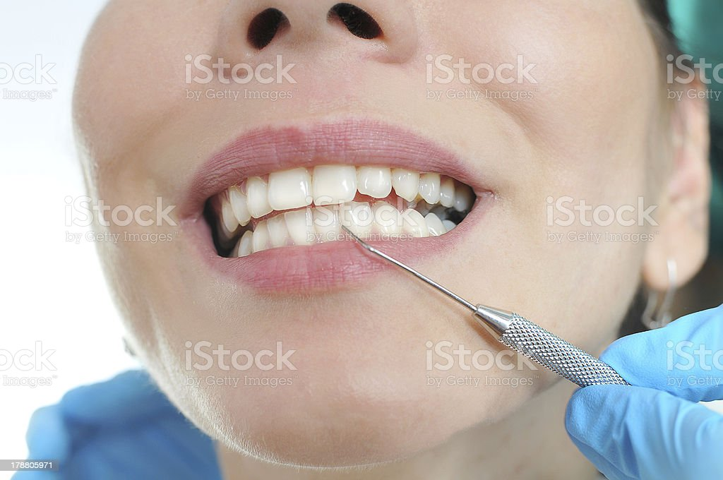 Caucasian woman with perfect white teeth at dentist check out stock photo