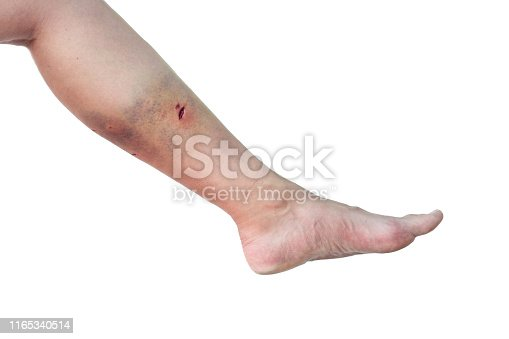Caucasian woman's leg with a dog bite wound in the calf on isolated white background. Female leg with bite marks from a dog and a large bruise.