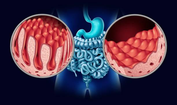 Celiac Coeliac Disease stock photo