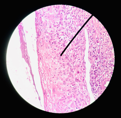 istock Cells in reproductive female cytology and histology concept medical scinece. 1194618985
