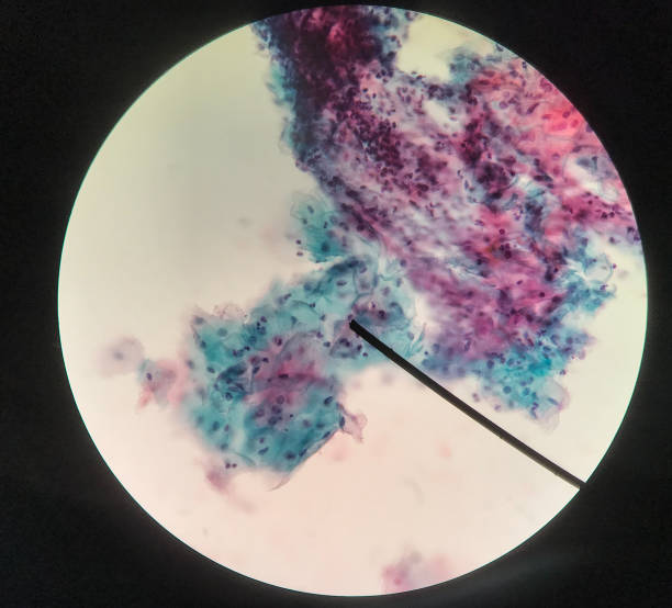 Cells in reproductive female cytology and histology concept medical scinece. Cells in reproductive female cytology and histology education concept. pap smear stock pictures, royalty-free photos & images