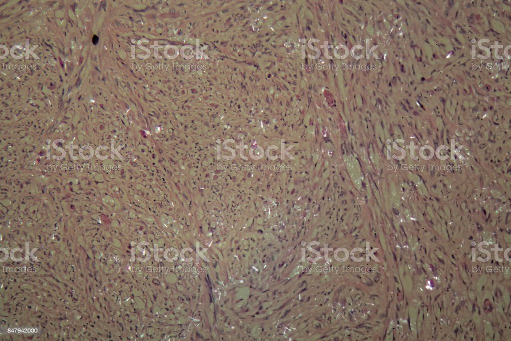 Cells of testicular cancer stock photo