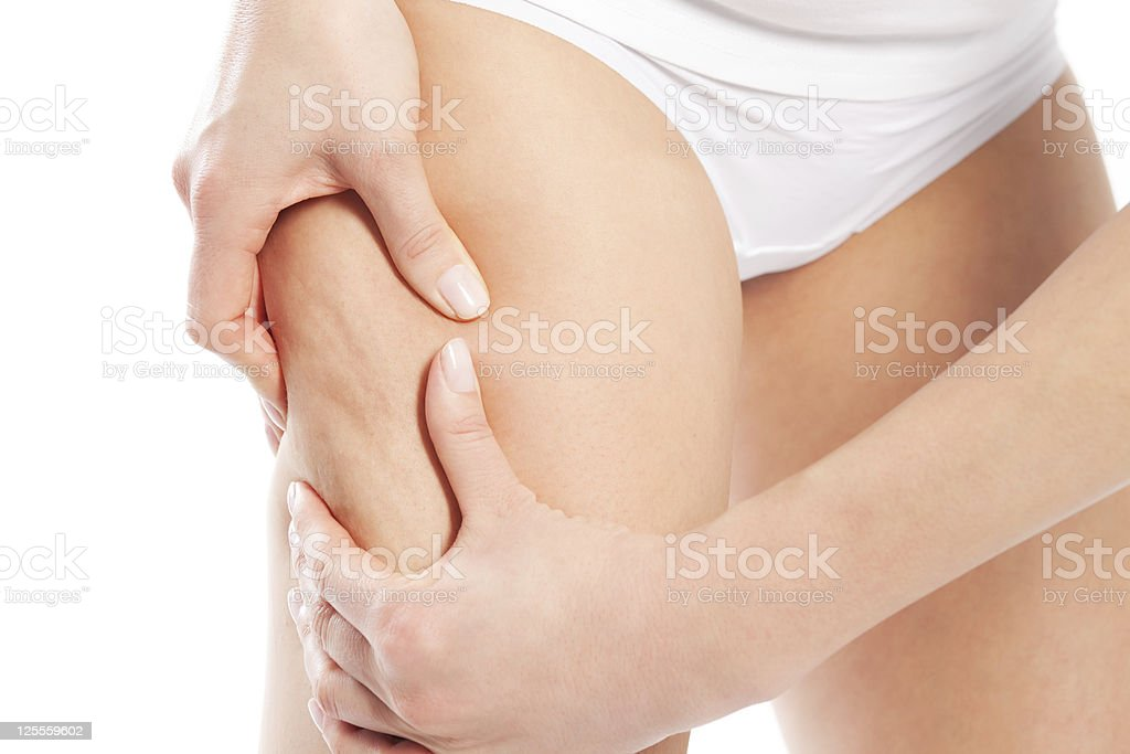 Cellulite – body and beauty stock photo