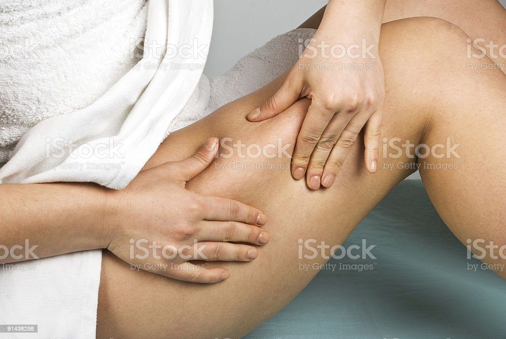 Cellulite check stock photo