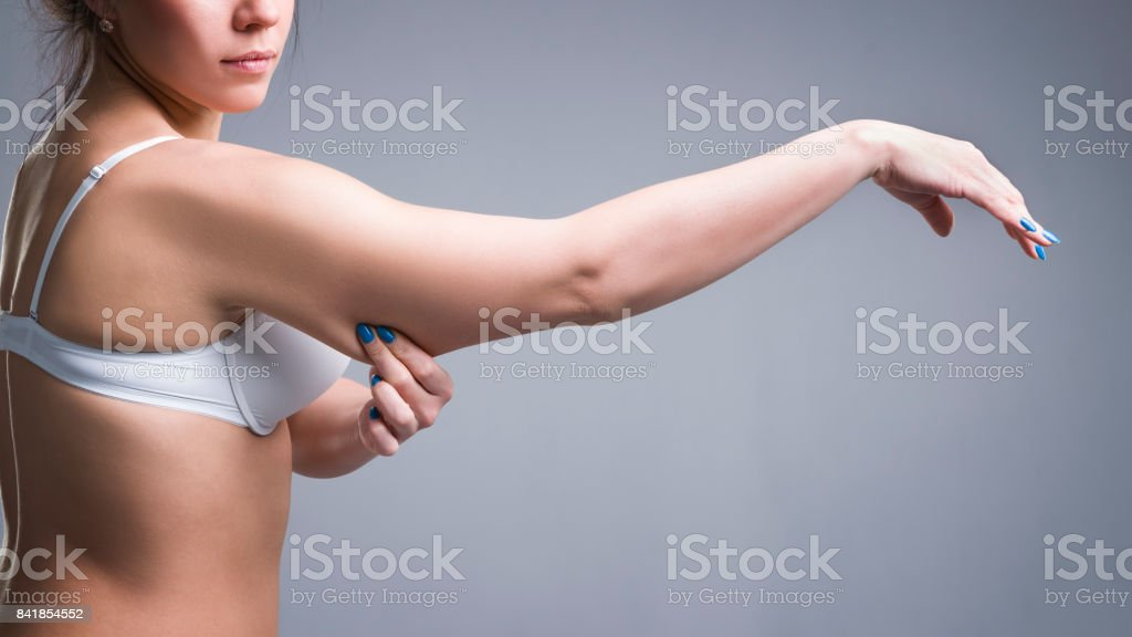 Cellulite on a woman's hand stock photo