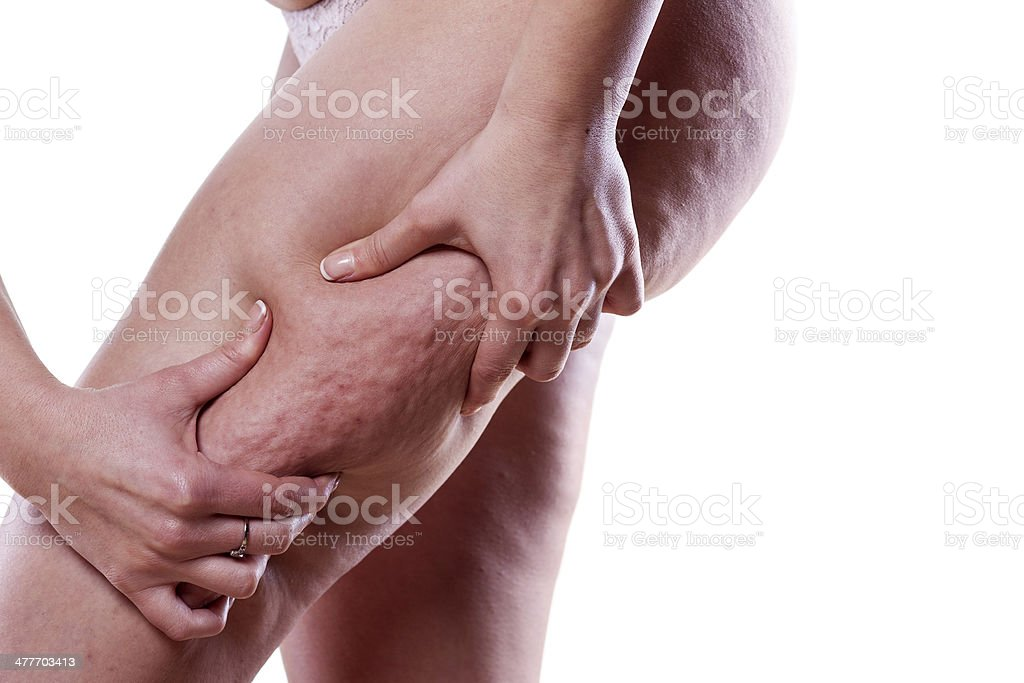cellulite-problem Lizenzfreies stock-foto