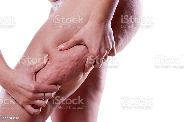 Celluliteproblem Stockfoto und mehr Bilder von Attraktive Frau