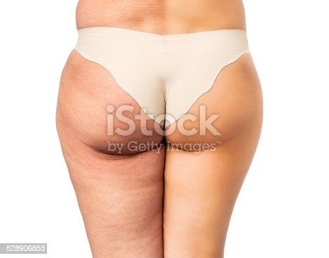 istock Cellulite treatment 528906853