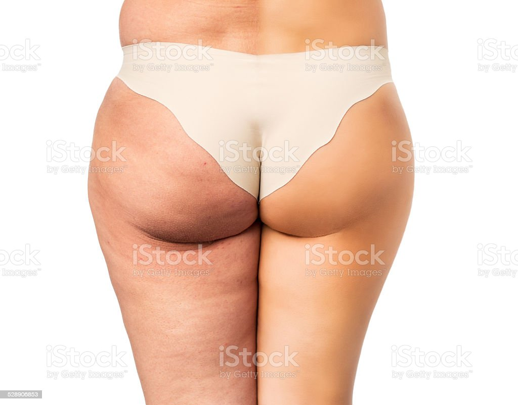 Cellulite treatment stock photo