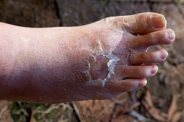 Cellulitis on leg and foot of mature diabetic man in daylight outdoors stock photo