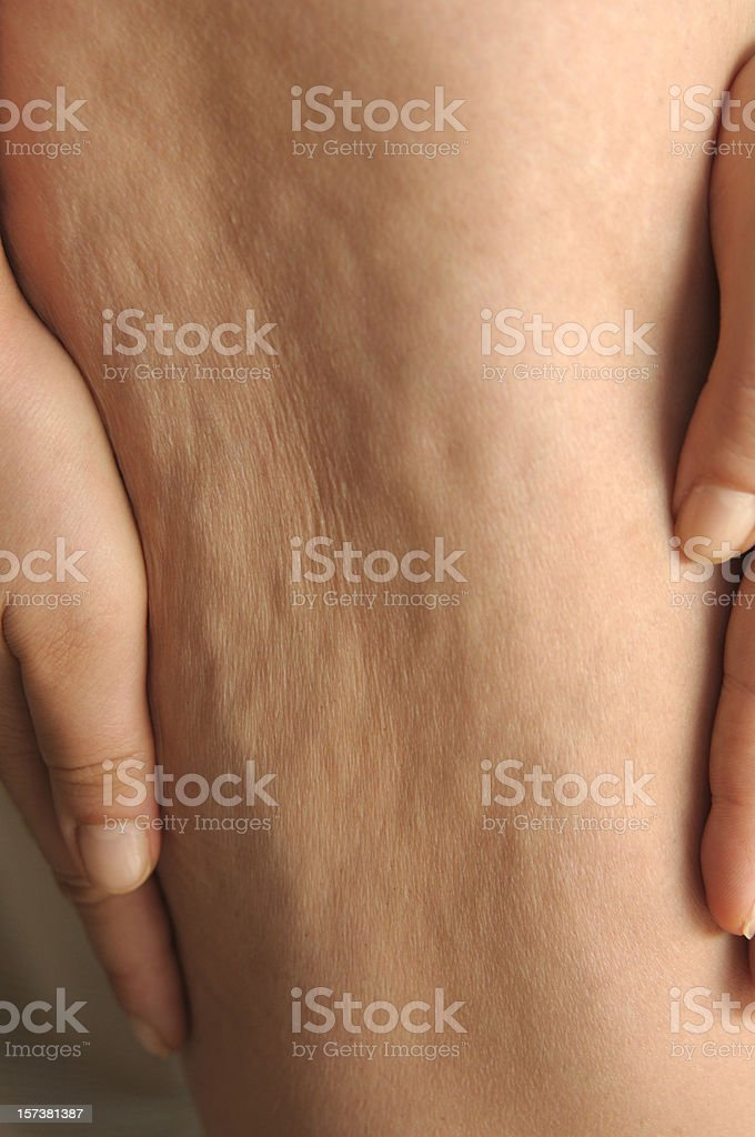 Cellulite royalty-free stock photo