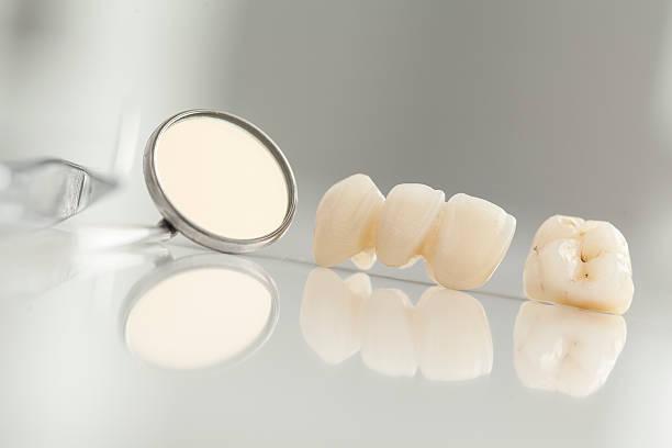 Ceramic bridge close up view Ceramic bridge close up view tooth crown stock pictures, royalty-free photos & images