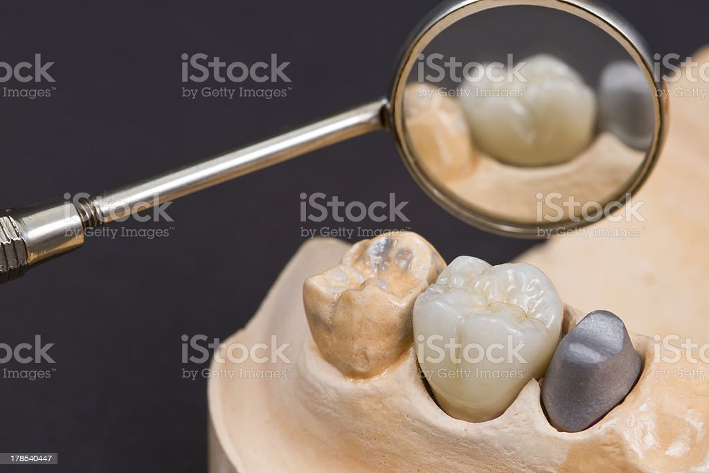 ceramic crown for molar teeth royalty-free stock photo