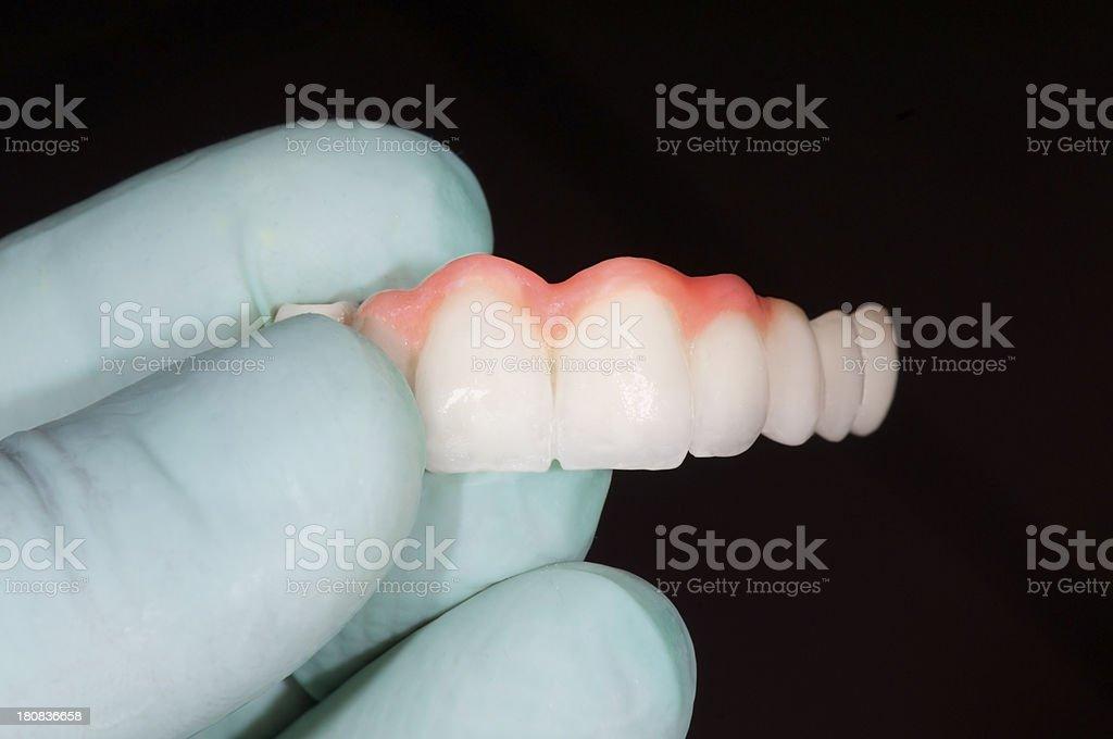 Céramique Pont dentaire - Photo