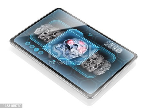 Modern tablet displaying scan of brain cortical activity