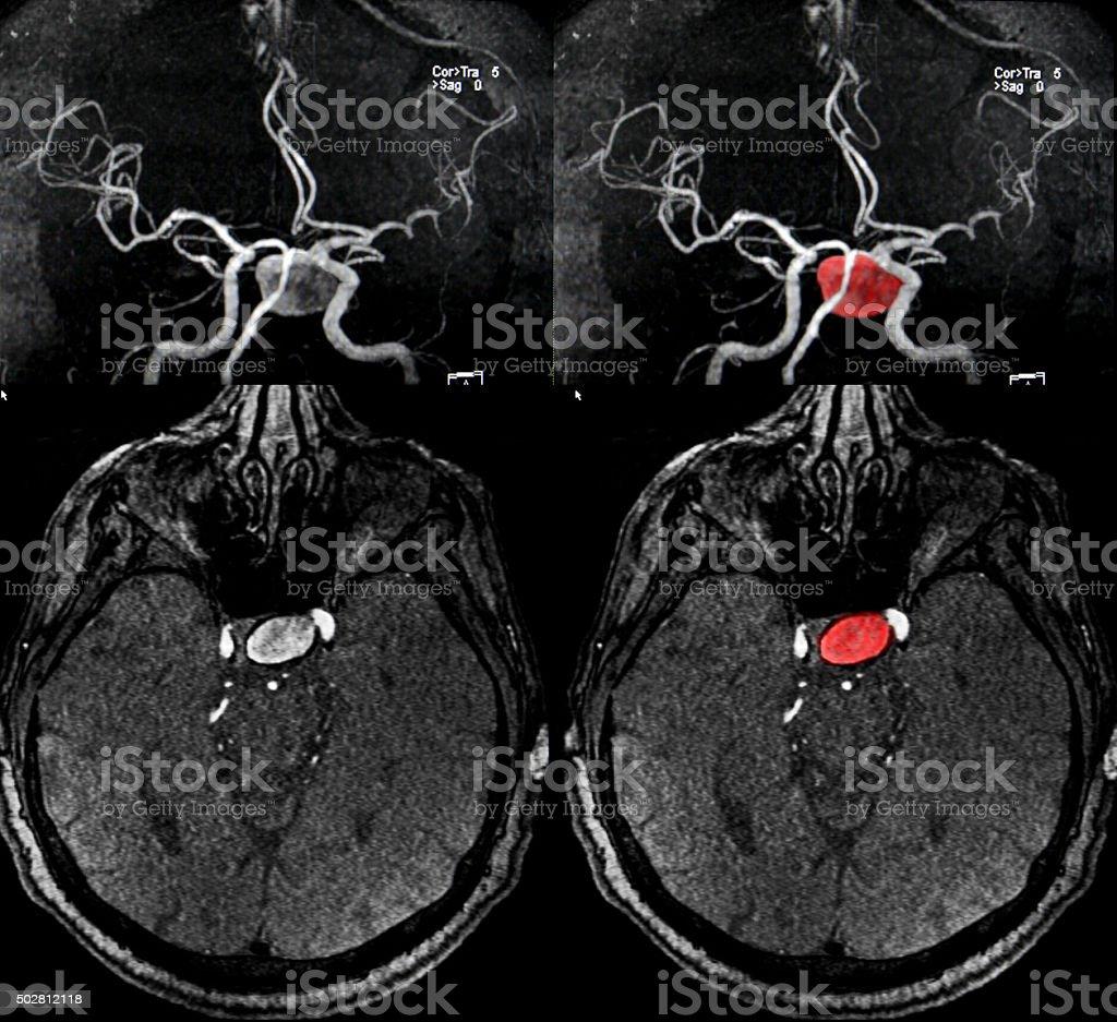 Aquaeductus Arterie aneurysm, MRI – Foto