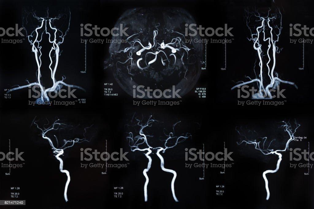 Cerebral artery image stock photo