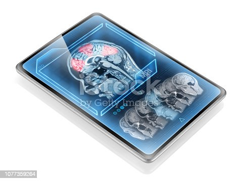 Brain activity scan on isolated diagonal tablet