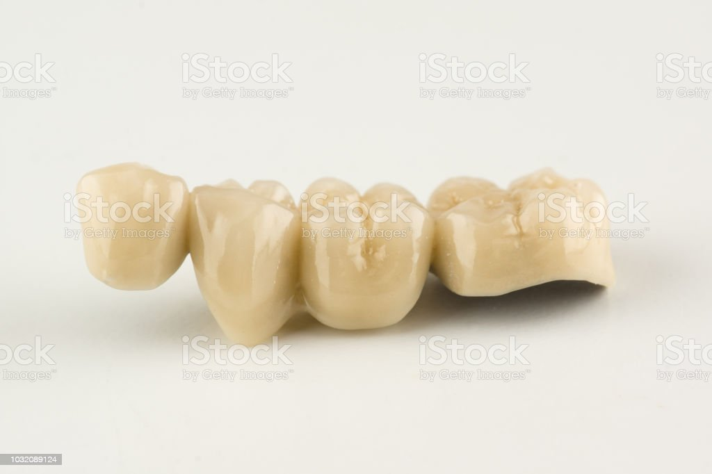 ponts dentaires cermet - Photo