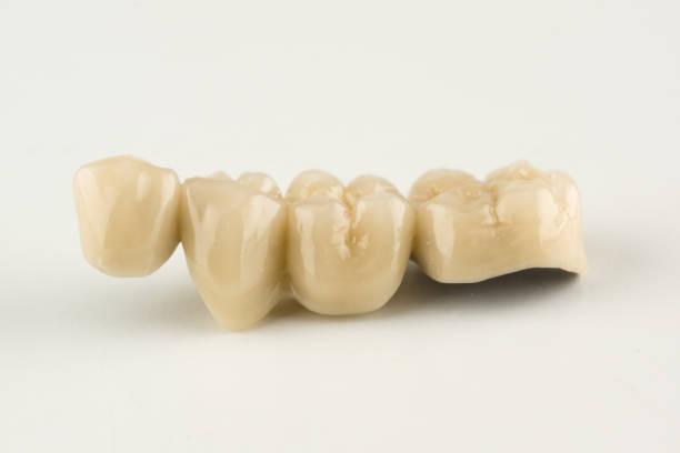 cermet dental bridges – zdjęcie