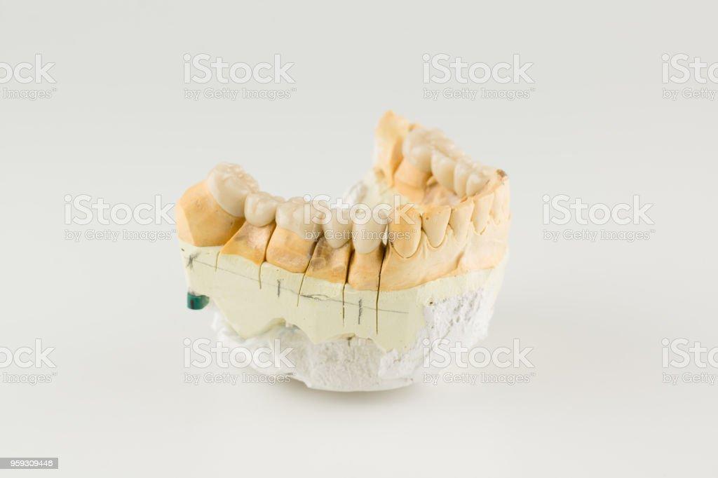 cermet dental bridges - Zbiór zdjęć royalty-free (Białe tło)