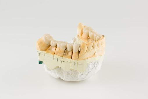 Cermet Dental Bridges - zdjęcia stockowe i więcej obrazów Białe tło