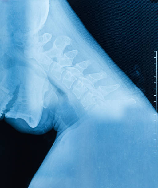 Cervical X-ray film Cervical X-ray film cervical vertebrae stock pictures, royalty-free photos & images