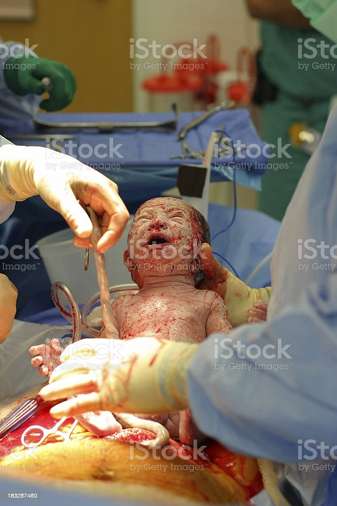 Cesarean Section royalty-free stock photo